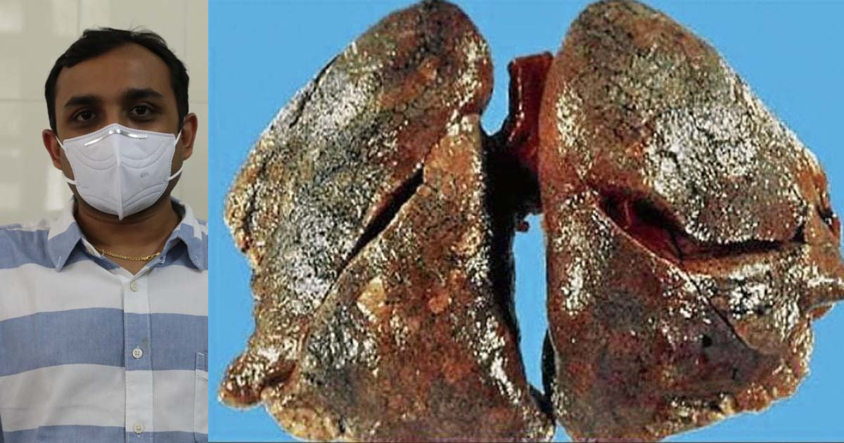 http://www.meranews.com/backend/main_imgs/fefsa_rajkot-doctors-study-gujarat-health-in-gujarat-health-n_2.jpg?74?100?22